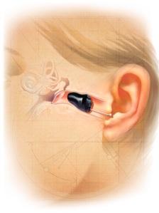 2010-iic-cutaway-ear.jpg?w=224&h=300